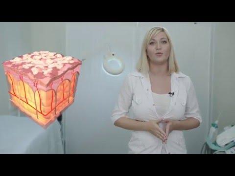 Пигментация кожи на лице фото и причины