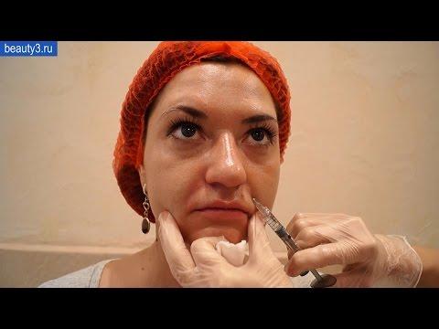 Лазерной шлифовки кожи лица an