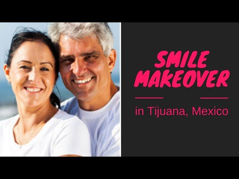 Beautiful Smile Makeover in Tijuana, Mexico