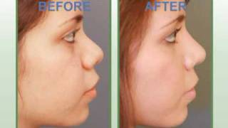 Narrowing Nose With Rhinoplasty