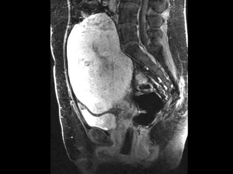 Kalcifikace prostaty jejich léčba