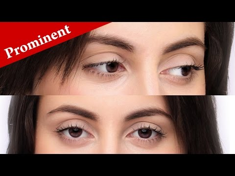 How to immediately know if your eyes are PROMINENT or PROTRUDING?