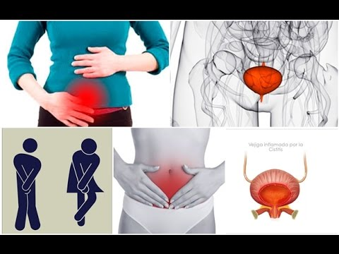 La impotencia prostatitis