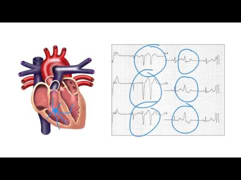 Determining the Origin of Ventricular Ectopic Beats