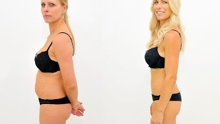 SlimLipo Laser Liposuction - Jana