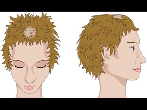 Das Mittel gegen den Haarausfall
