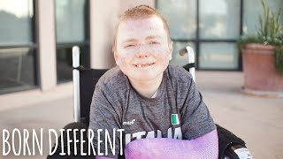 The Man Whose Skin Falls Off | BORN DIFFERENT