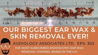 OUR BIGGEST EAR WAX & SKIN REMOVAL EVER! 2020 - EP 302