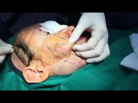Facial mask na may gel at solkoseril dimexide