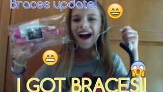 Braces/Headgear Update+I GOT BRACES!?! (#2)