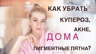 Как ДОМА убрать купероз, пигментные пятна, акне и мелкие морщины (косметология своими руками)