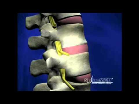 Rückenschmerzen Behandlung und Gymnastik