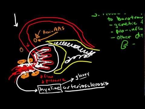 Priorität Problem des Patienten mit hypertensive Krise