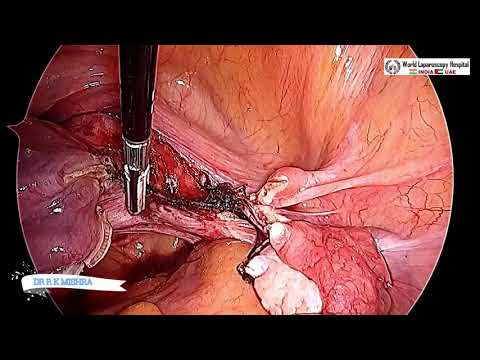 Safest Way to Perform Total Laparoscopic Hysterectomy with Bilateral Salpingo-oophorectomy