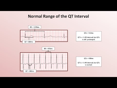Video Advanced EKGs - The QT Interval and Long QT Syndrome
