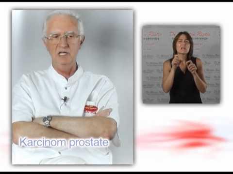 Erotično prostate masaža roke