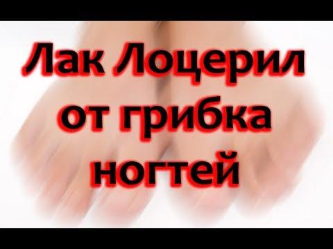 Il trattamento di unghia coltivato dal laser il prezzo in Nizhniy Novgorod