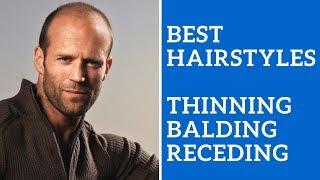 Best Mens Hairstyles For Thinning Hair, Balding Hair, Or Receding Hair Line