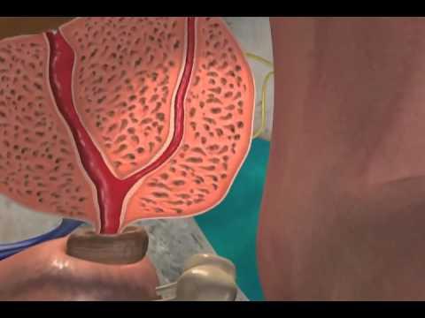 Veselka θεραπεία μύκητα της προστατίτιδας