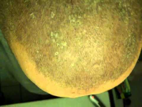 Das Shampoo bei der Schuppenflechte der behaarten Kopfhaut der Preis