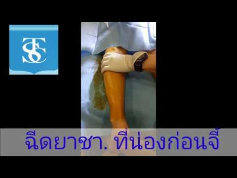 Thrombophlebitis เส้นเลือดบนของรยางค์บน