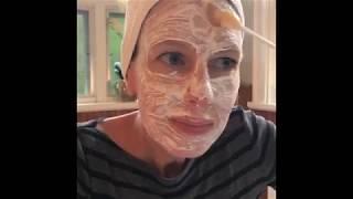 Signature Facelift Designer Peel by Image Skincare