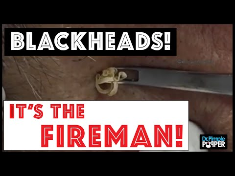 Tons of Blackheads Popped At Once!