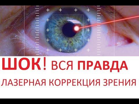 Глаукома и лазерная коррекция зрения
