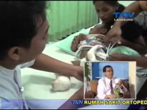 Video Kenali Kaki Pengkor (X) Dan (O) - Part 2 - RS Ortopedi TATV 04/08/2015