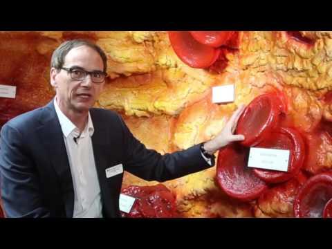 Wasserstoffperoxid-Behandlung von Bluthochdruck