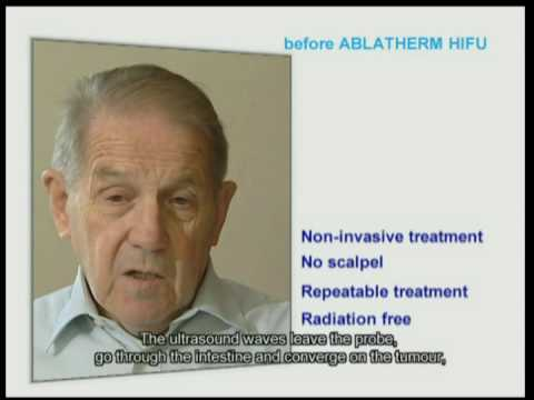 Robotic HIFU patient's testimony