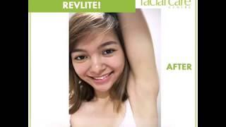 Lighten Dark Underarms With RevLite