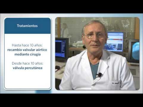 Según lo medido por la presión sanguínea arterial y por qué se mide generalmente en la arteria braqu