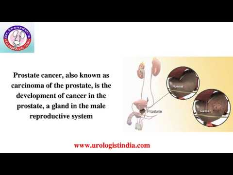 Wie man eine Prostatamassager machen