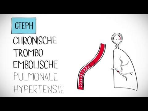 Hypertonie in der modernen Welt