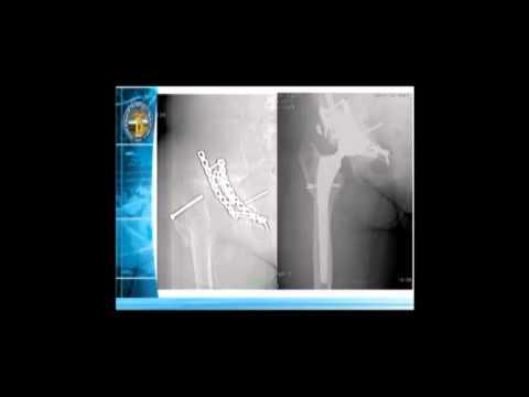 Baja de la espalda y tratamiento del pie