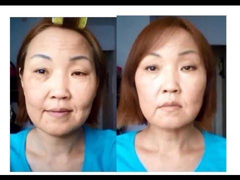 Отбеливающие средства от пигментных пятен на лице отзывы