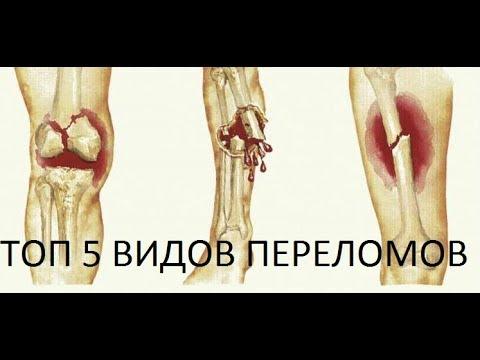 ТОП 5 переломов