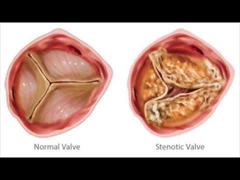 Hipertenzinės aukštos top slėgio