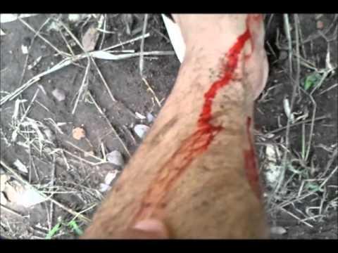 คลินิกเส้นเลือดขอดในอูฟา