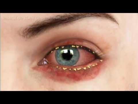 Le psoriasis sur la personne en été