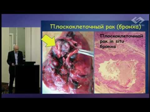 Санатории по лечению заболевания печени