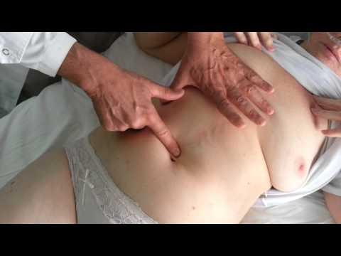 El efecto de la elevación de la presión arterial