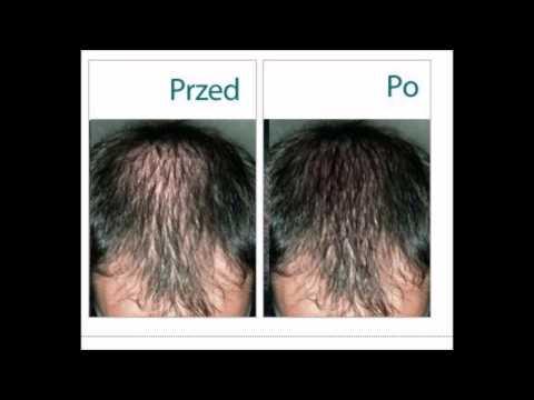 Ustawia oleje do wzrostu włosów