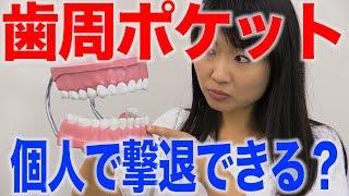 歯周ポケットは浅いうちに対応するのがよい?