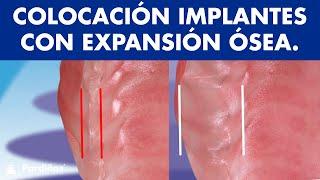 Colocación de implantes dentales mediante expansión ósea ©