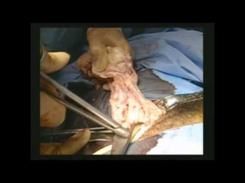 Total Laparoscopic Hysterectomy and Vaginal Morcellation