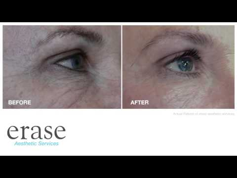 Simulator para sa facial wrinkles