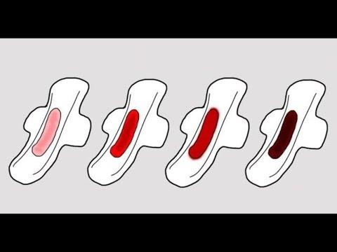 Die Parasiten auf der Netzhaut