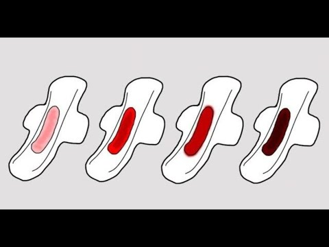 Welcher Experte der Würmer behandelt